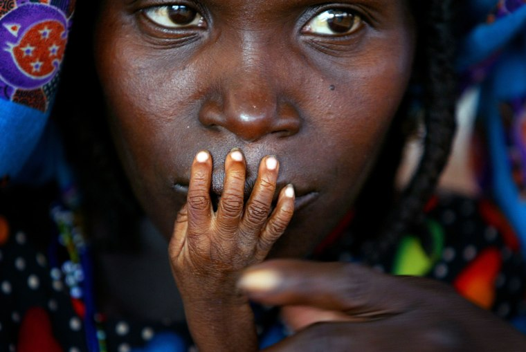 Image: File photo shows the fingers of malnourished one-year-old Alassa Galisou pressed against the lips of his mother