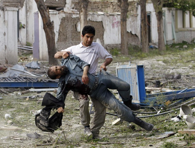 Image: Wounded Afghan policeman is carried away from the site of an explosion in Kabul