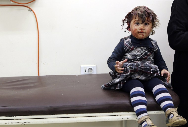 Image: Injured girl, covered with blood, sits at a clinic after being injured by what activists said were barrel bombs dropped by forces loyal to Syria's President Assad in Aleppo's al-Sakhour district