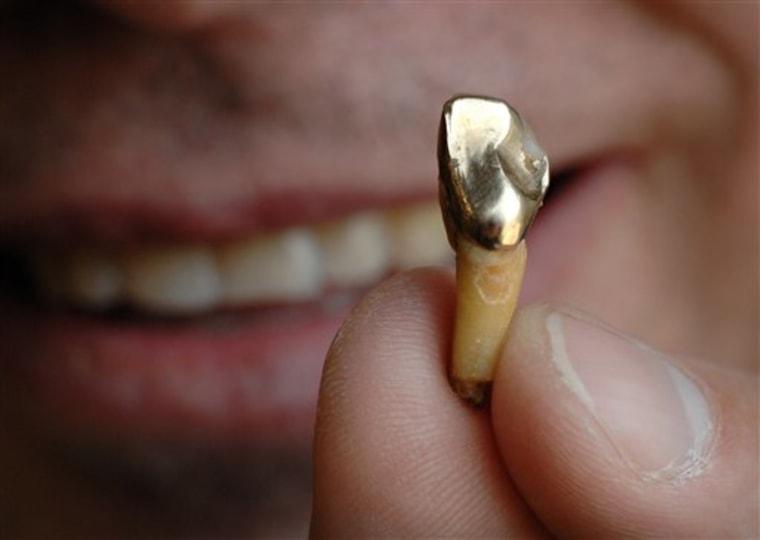 Dental Gold Rush