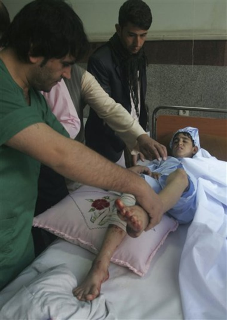 An Afghan doctor helps a boy after he has been injured in an explosion by a remote-controlled bomb killing a police woman and two civilians in Herat, Thursday, Sept. 29.