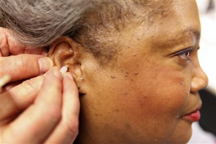 Military Acupuncture
