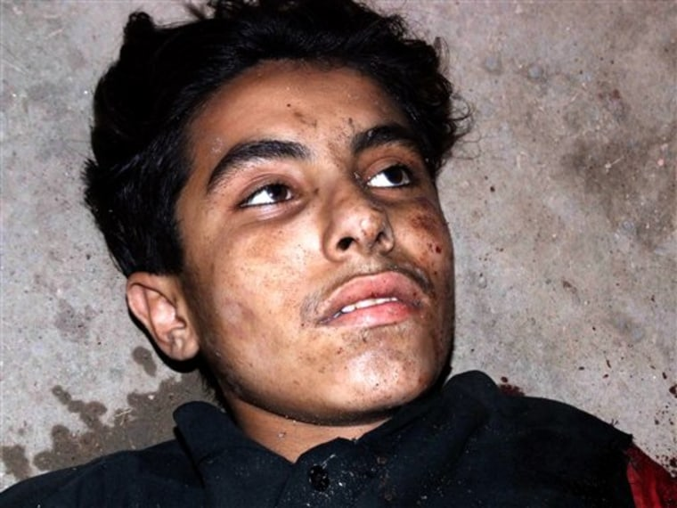 A wounded suicide bomber whose explosive vest failed to detonate waits to be taken to a hospital after an attack at a shrine near Dera Ghazi Khan in Pakistan on Sunday.