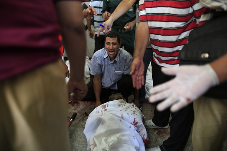 An Egyptian man sits beside his comrade, a supporter of Egypt's ousted President Mohammed Morsi, injured during clashes with security forces at Nasr City, where pro-Morsi protesters have held a weeks-long sit-in, in a field hospital in Cairo, Egypt,...