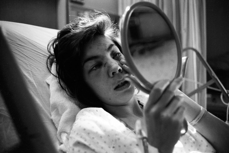Diane, who was beaten by her spouse, looks in the mirror at a hospital.