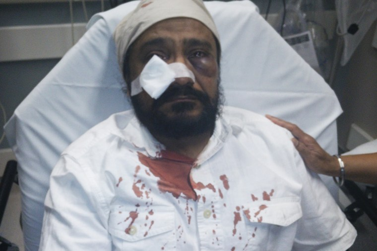 Inderjit Singh Mukker after he was attacked. (Photo courtesy of the Mukker family/The Sikh Coalition)
