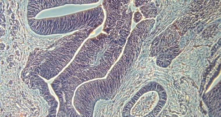 Image: photomicrograph of neural tissue derived from human skin cells