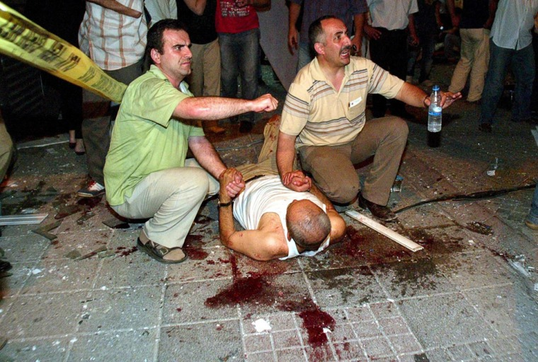 Image: A wounded man lie on the ground after the explosion in Istanbul