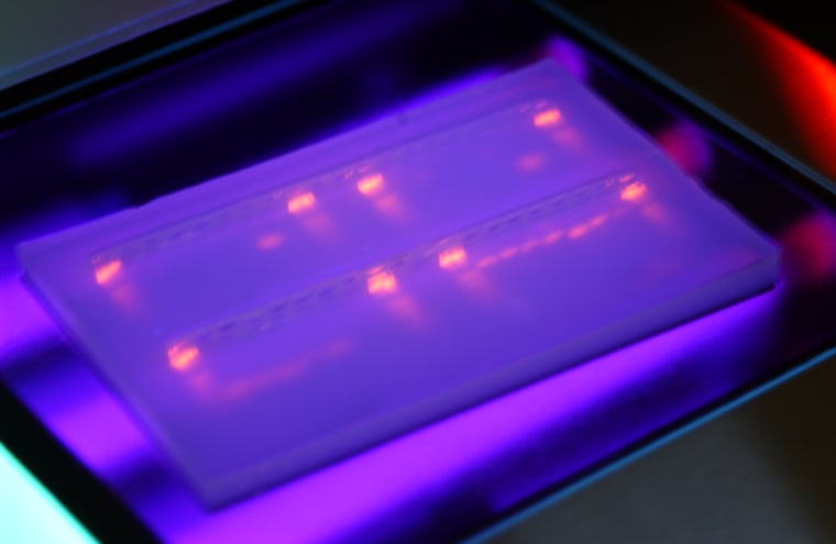 """Anthrax DNA fluoresces under ultraviolet light in a gel electrophoresis plate. DNA analysis can detect the """"fingerprint"""" of an anthrax strain."""