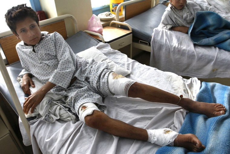 Image: Afghan school boy Nasir Ahmad, lays on the bed at the hospital