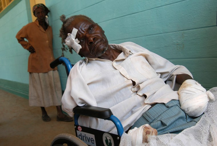 Image: A man who had one of his hands chopped of with a machete sit in a wheelchair at the hospital in the town of Burnt Forest, some 35 kilometers from Eldoret, Kenya.