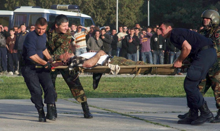 Image: Albanian blast injury