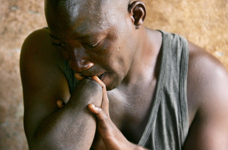 Image: James Pombo, who lost his hand during a civil war in Sierra Leone, is pictured 02 April 2006 at the amputees camp near Freetown, Sierra Leone