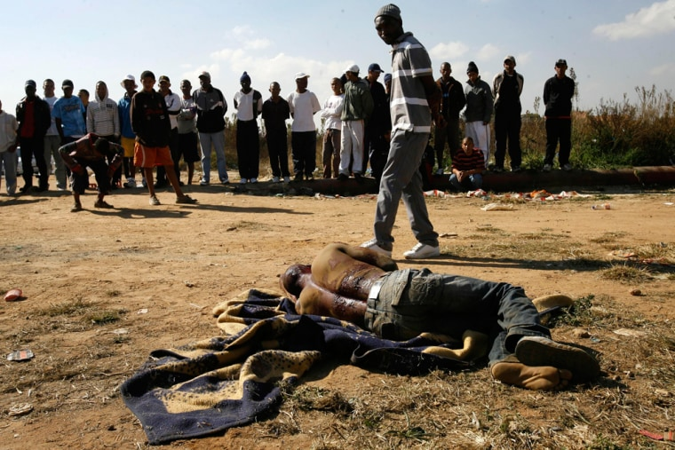 Image: man from Malawi lays wounded