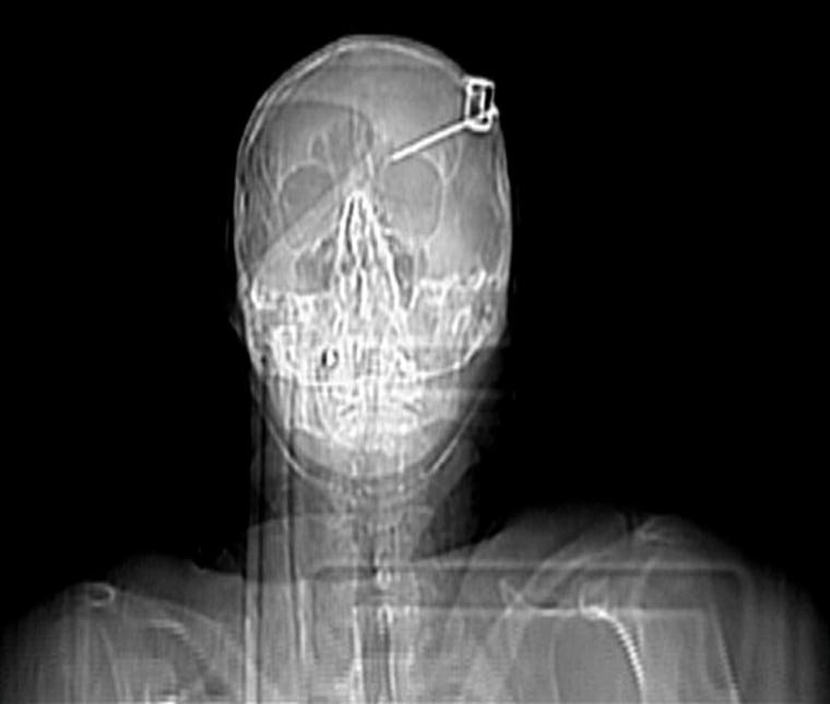What a headache: Man survives nail in skull