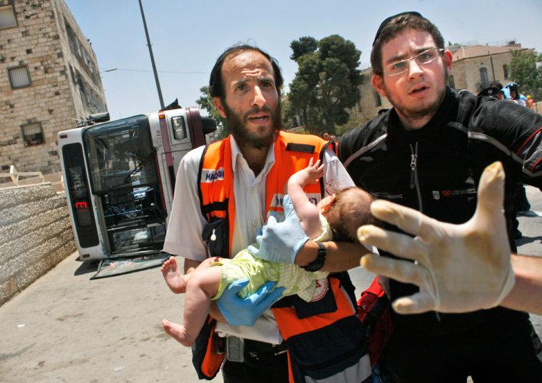 Image: injured Israeli child