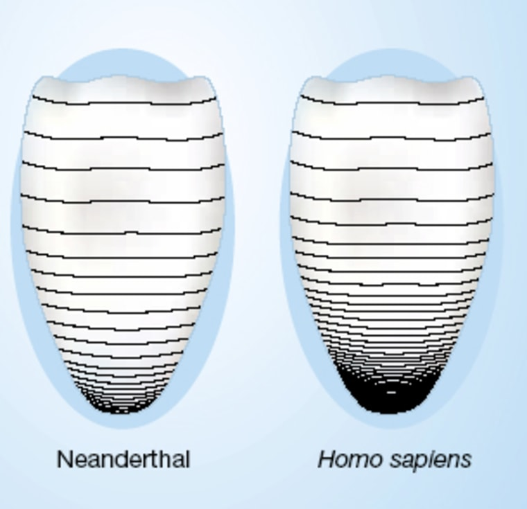 The black lines indicate perikymata, characteristic ridges on teeth that are caused by periodic changes in enamel growth. The ridges areless densely packedin Neanderthal fossil teeth, indicating that the species had a shorter period of dental growth and therefore matured more quickly than modern humans, researchers say.