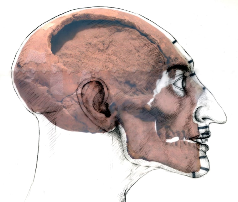 A sketch showing the head of the suspected firstborn son of Pharaoh Ramses II is laid over a color picture of a skull found in the KV5 royal tomb. The sketch was done by Dr. Caroline Wilkinson based on the cranial measurements of the skull.