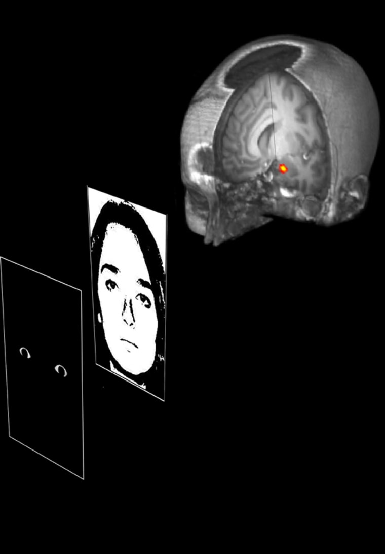 Brain imaging studies in volunteers indicated that the amygdala, shown as a red and yellow spot in this graphic, responded specifically to the wide-eyed image that was interspersed with images of neutral faces.