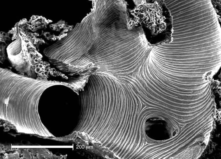 Tracheal tubes run through the body of a beetle like plumbing. This image provides a microscopic view. The white bar at lower left represents 200 microns, or twice the thickness of a human hair.