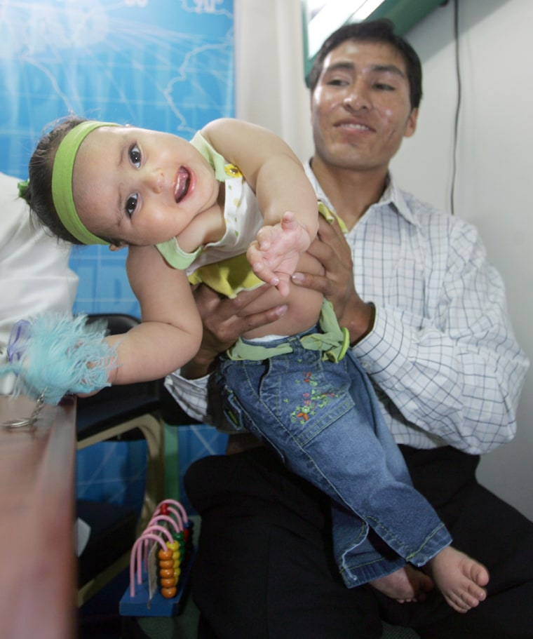 Milagros Cerron plays with her father, Ricardo Cerron, during a news conference in a municipal hospital in Lima, Peru on Tuesday.