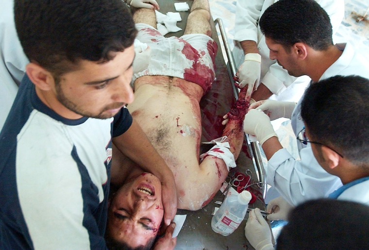 A man injured in a drive-by shooting is treated at a hospital on Wednesday in Khalis, north of Baghdad.