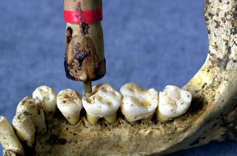 Researchers conduct a re-enactment of the method presumably used in Pakistan to drill teeth 9,000 years ago. A flint drilling tip was mounted in a rod holder and attached to a bowstring. In less than a minute, the technique produced holes similar to those found inprehistoric teeth. One important difference: The Neolithic dentists performed their operations on living humans.