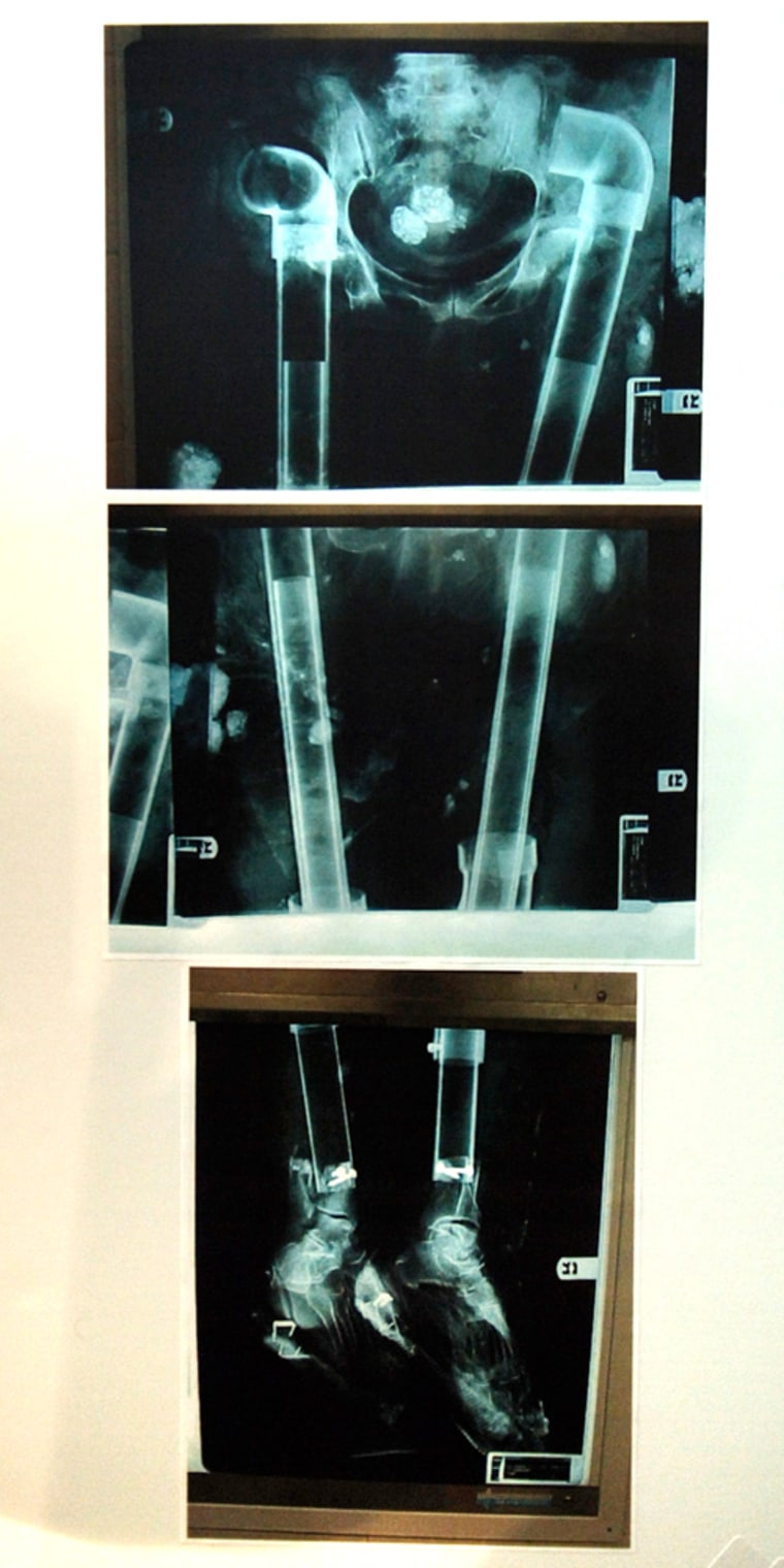 An x-ray of the lower part of a deceased person shows that PVC plumbing pipes were inserted where the bones once were in this photo released by the Brooklyn, N.Y. District Attorneys Office. Michael Mastromarino, owner of Biomedical Tissue Services of Fort Lee, N.J., was charged with secretly carving up corpses and selling the parts for use in transplants.