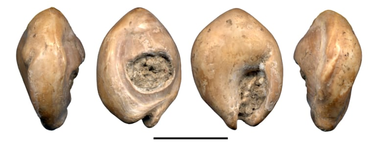 These are four views from different angles of a perforated Nassarius gibbosulus shell found at an archaeological site in Oued Djebbana, Algeria. The shell may be as much as 100,000 years old. The scale bar represents 1 centimeter, or half an inch.