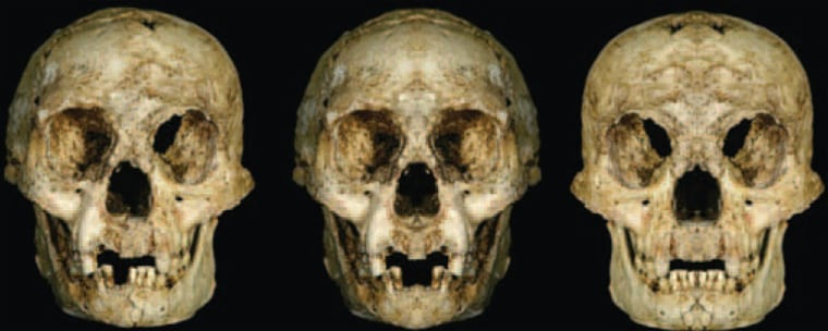 The skull specimen attributed to a newly designated species known as Homo floresiensis is at left. Researchers created computer images of the skull with theleft side mirrored at the midline (center) and the right side mirrored at the midline (right) in an effort to show that there were growth abnormalities.