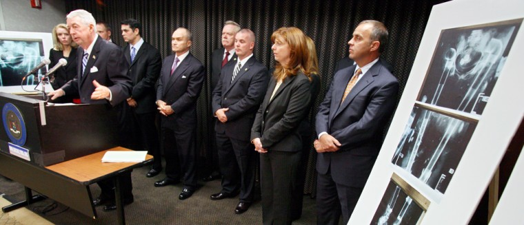Human body parts replaced with PVC piping can be seen in X-rays, right, on display during a press conference at the Brooklyn District Attorneys office on Wednesday. District Attorney Charles Hynes, left, joined by other law enforcement officials, announced new indictments involving funeral homes in an alleged scheme to plunder corpses and sell the body parts for profit.