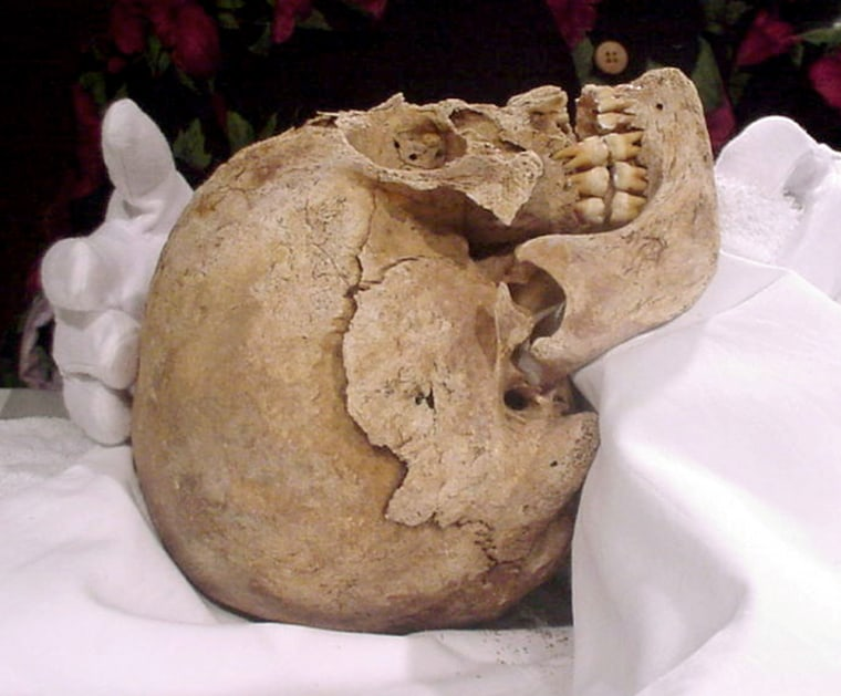 Forensic anthropologists have confirmed that the skull of a man buried on St. Croix over 400 years agoshowed evidence of having undergone an autopsy.