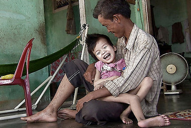 Pham Van Xong and his 9-year-old son Truc, who local medical officials say is a victim of Agent Orange, in An Trach, Vietnam.