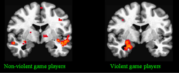 In a recent research study, adolescents played two different types of video games for 30 minutes. Teens that played the violent game (right) showed increased activity in the amygdala, which is involved in emotional arousal.