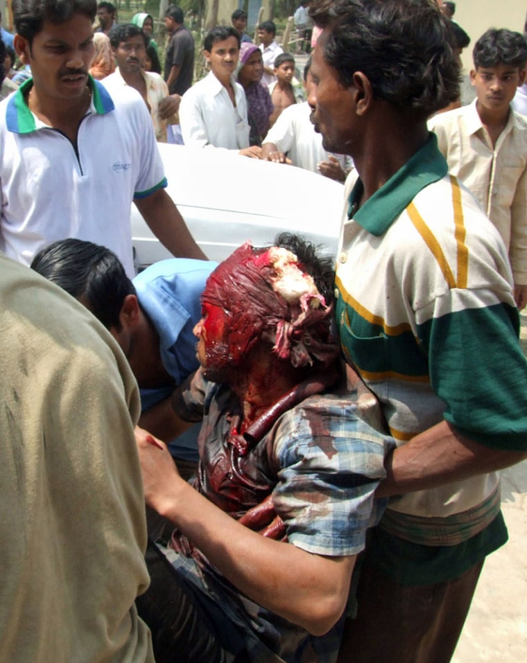 An unidentified man witha bulletwound is carried to a hospital at Nandigram on Wednesday.