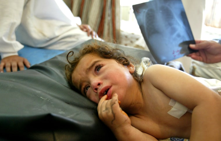 Kholood, a 2-year-old Iraqi girl, lies in a bed Sunday in the hospital in Ramadi, west of Baghdad, Iraq. Kholood was injured by shrapnel in her back when U.S. helicopters fired on a wedding party on May 19 in the desert near the border with Syria, killing more than 40 people. Kholood lost her parents, and four of her brothers and sisters during the attack.