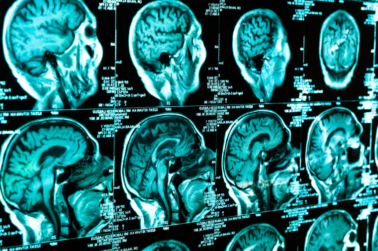 Diet Supplement Can't Cure Concussions: FDA