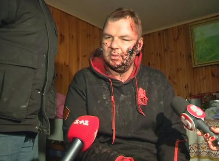 Image: Bulatov, 35, one of the leaders of anti-government protest motorcades called 'Automaidan', speaks to journalists after being found near Kiev