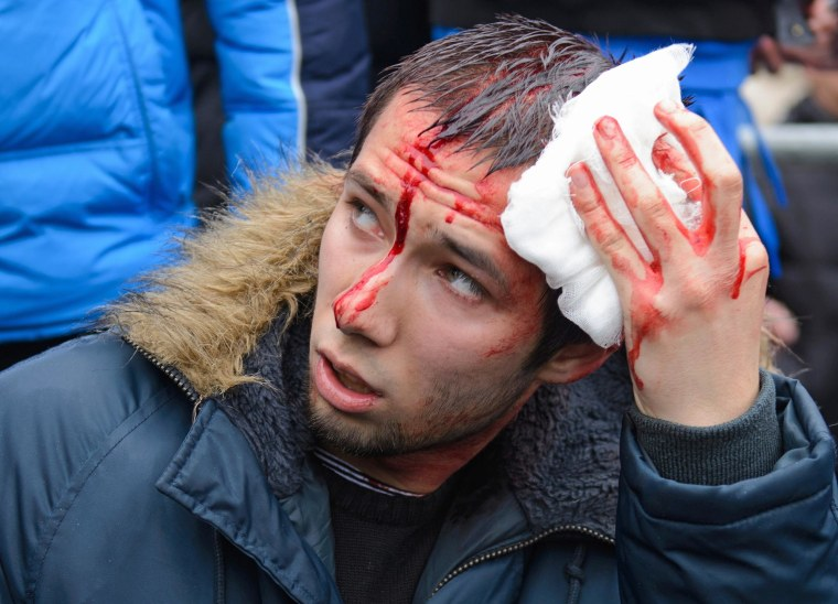 Image: A wounded pro-Western activist tends to his injuries after clashes with pro-Russia activists at a regional government building in Kharkiv, Ukraine.