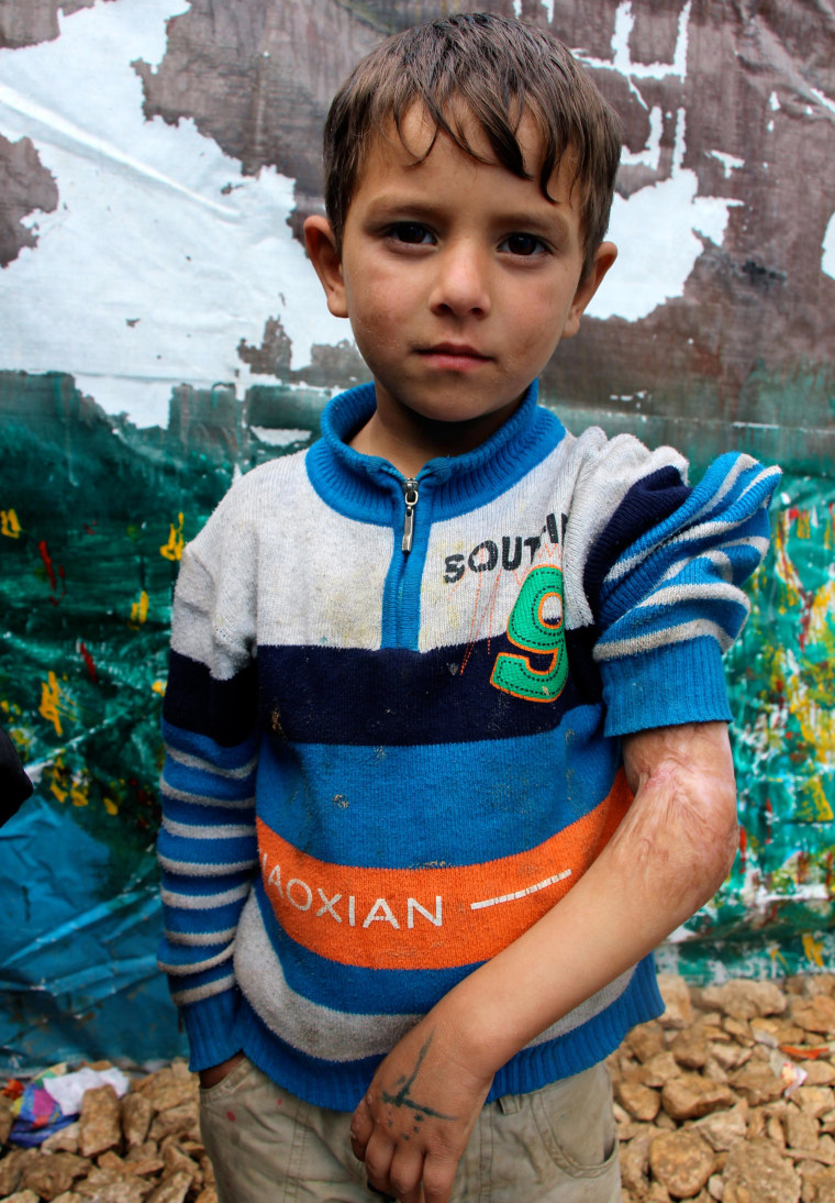 Four-year-old Yusef's arm was burned in a cooking accident in Syria.