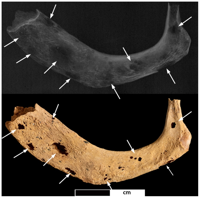 Image: Photo and radiograph of left first rib of ancient skeleton