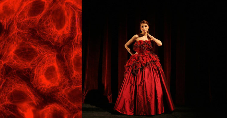 Image: A ball gown inspired by microscopic photos of cancer cells designed by a University of British Columbia costume design professor