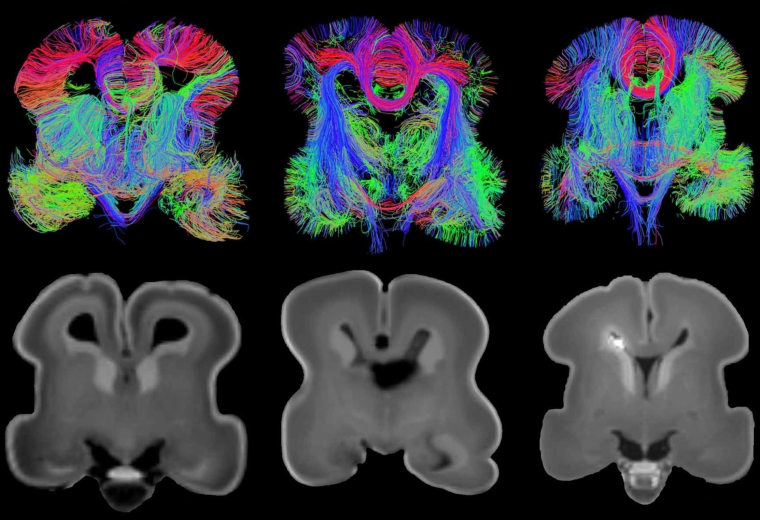 Maps of Unborn Human Brains Point to Medical Frontiers