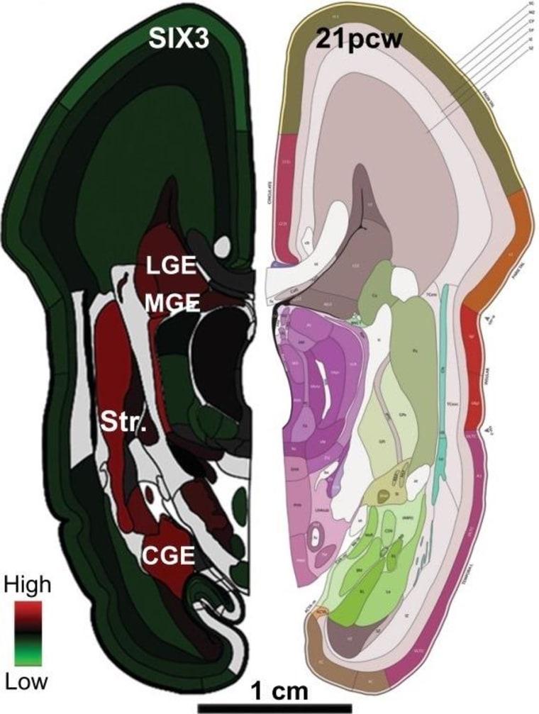 Image: Brain view