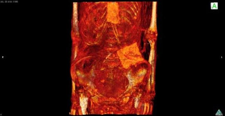 Mummy Brain