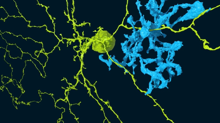 Image: Starburst cell and bipolar cell