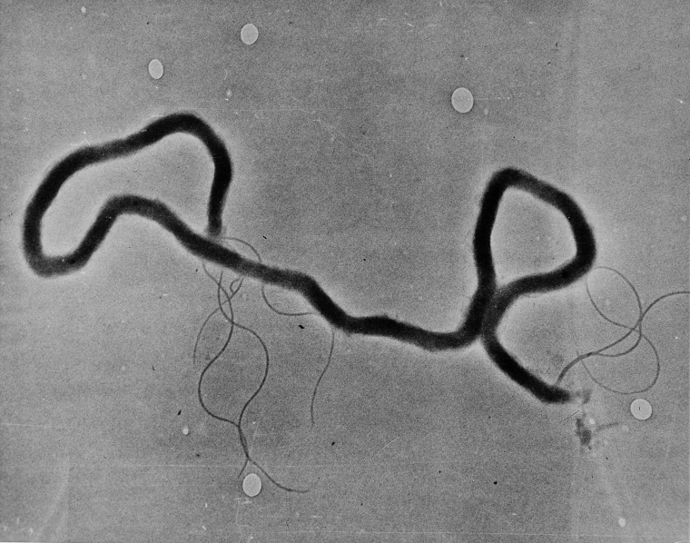 The organism treponema palladium, which causes syphilis, is seen through an electron microscope on May 23, 1944.