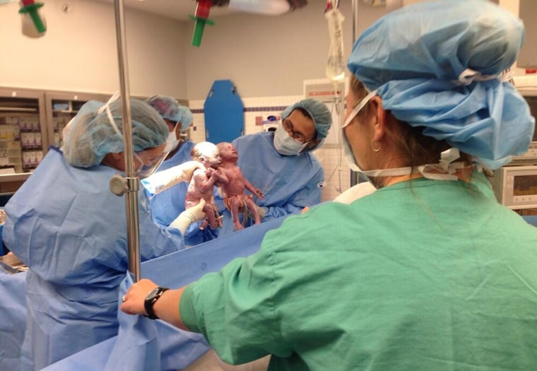 Image: Monoanmiotic were born holding hands.