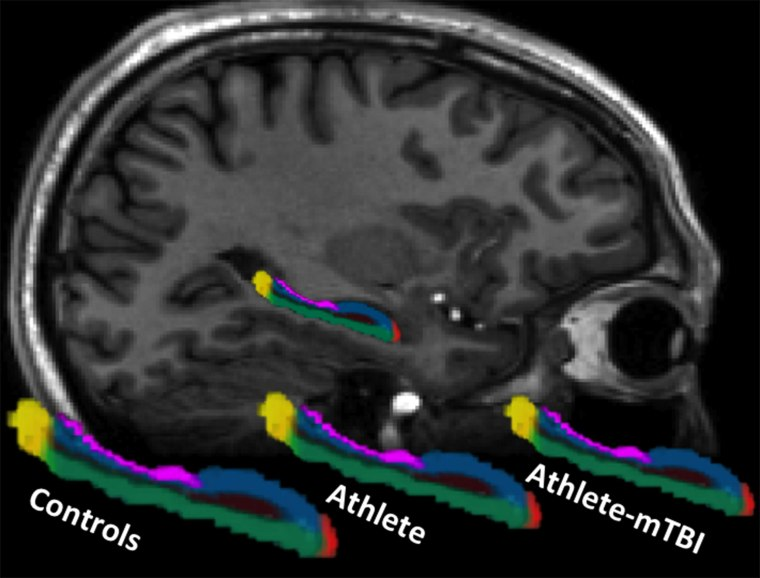 Image: A saggital view of the brain