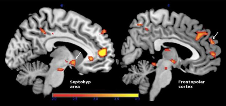 Image: researchers who used brain scans and biofeedback to help people strengthen their feelings of empathy